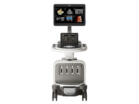 CVS Medical Malaysia Philips EPIQ Elite